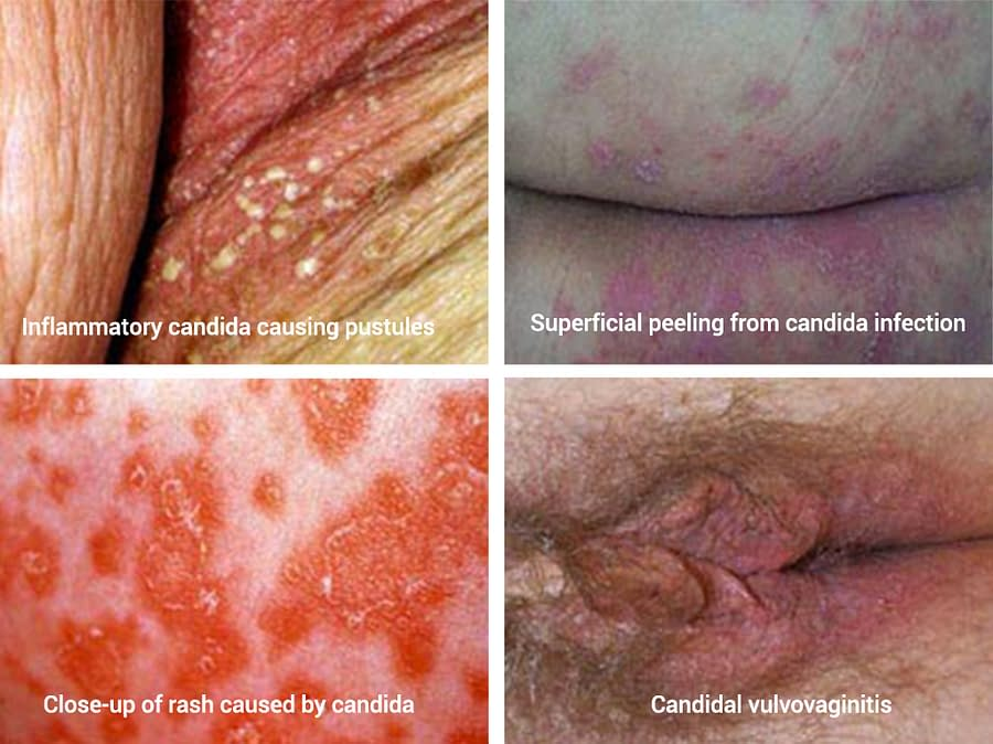 Candida Infections Over The Body
